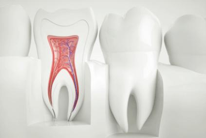 Wurzelkanalbehandelte, tote Zähne